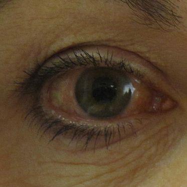 glaucoma-redeyes