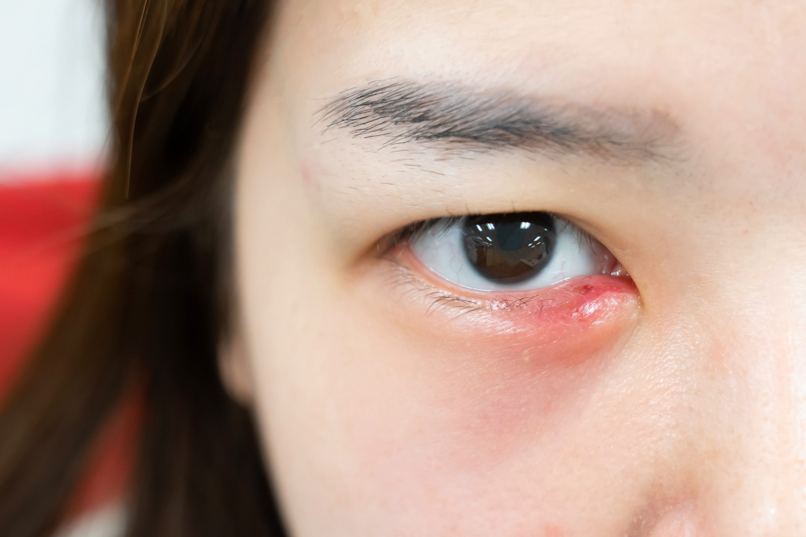 All About Eye Styes-Stye Causes, Treatment and Prevention | Dr. Jiwani &  Associates